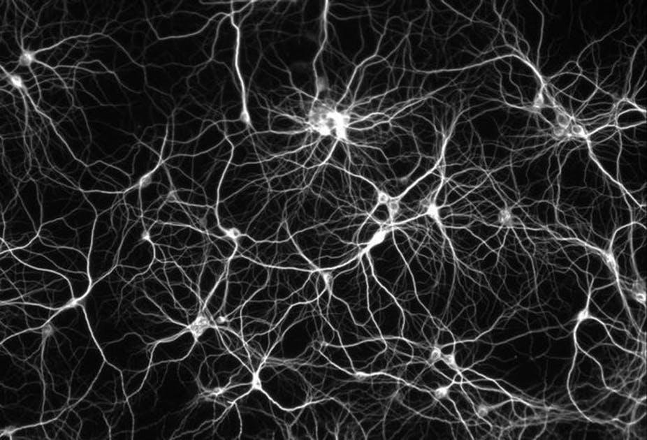 Wie duellierende neuronale Netze
